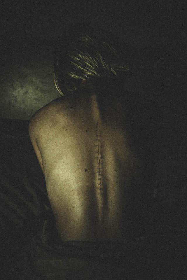 Liguilla de octubre – Cicatrices